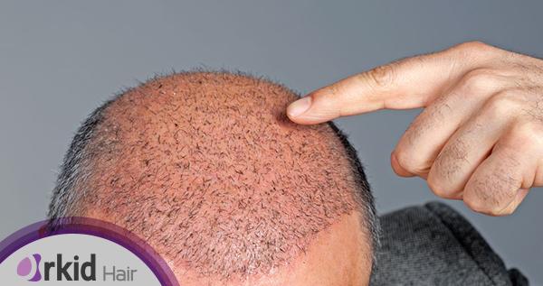 إصلاح عمليات زراعة الشعر