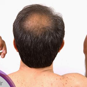 زراعة الشعر هل هي حقا الحل لتساقط الشعر؟