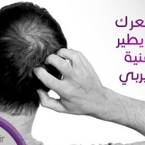 علاج الميزوثيرابي لتساقط الشعر