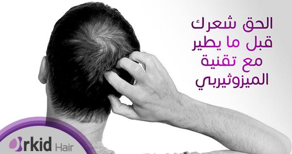 علاج تساقط الشعر بــ(Mesotherapy) والــ(PRP)
