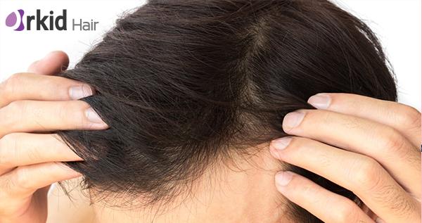 زراعة الشعر: 8 خطوات من داخل غرفة العمليات