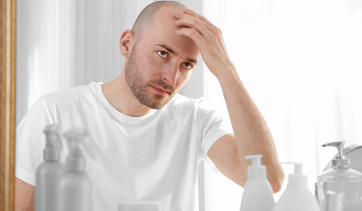 أعراض زراعة الشعر