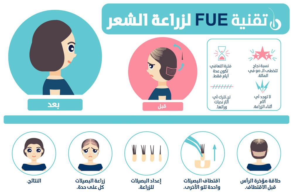 تقنية FUE لزراعة الشعر
