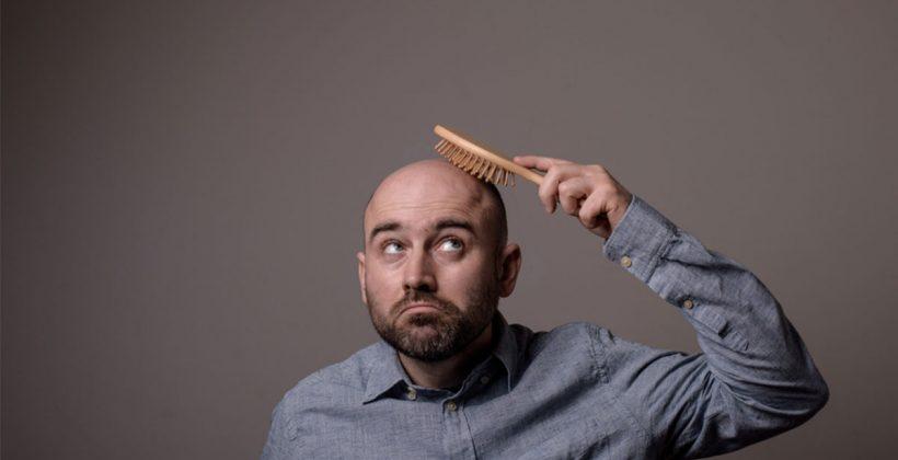 ما هي تقنيات زراعة الشعر وكيف يمكن الحصول عليها؟