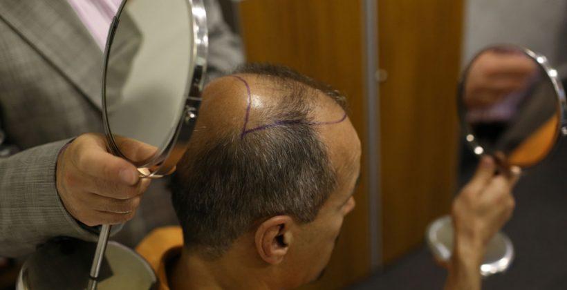 عملية زراعة الشعر الطبيعي بالاقتطاف وخطوات الحصول عليها