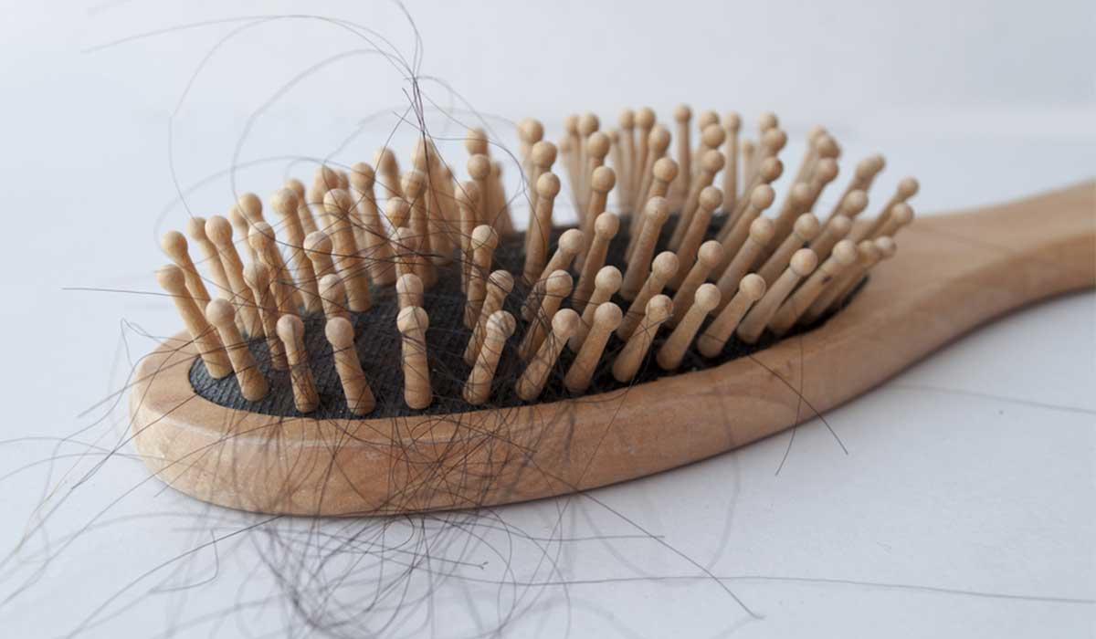 تساقط الشعر بعد الزراعة