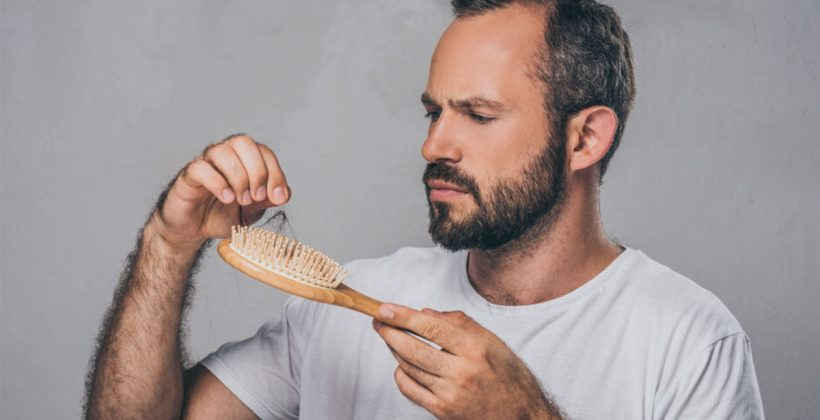 علاج تساقط الشعر الوراثي لدى الرجال والسيدات