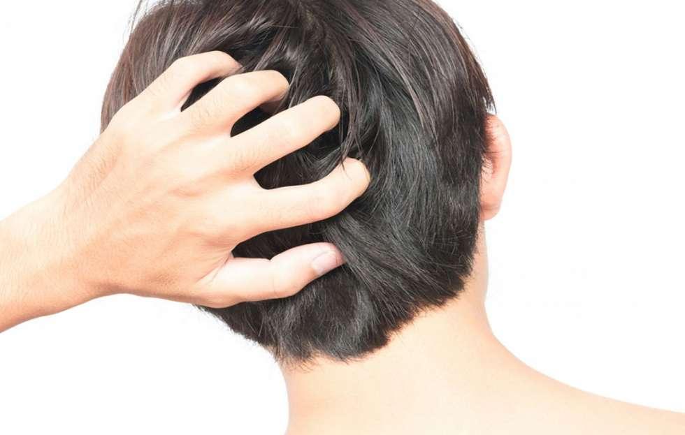 اضرار زراعة الشعر بالاقتطاف