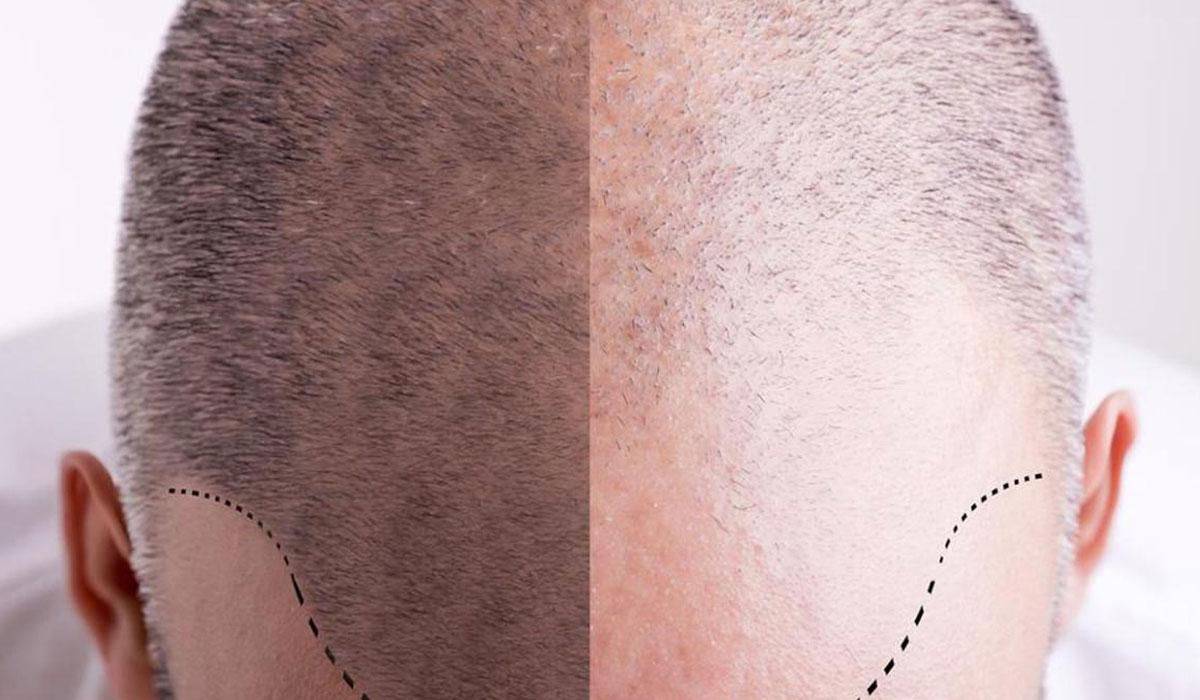 بعد-زراعة-الشعر-بشهر