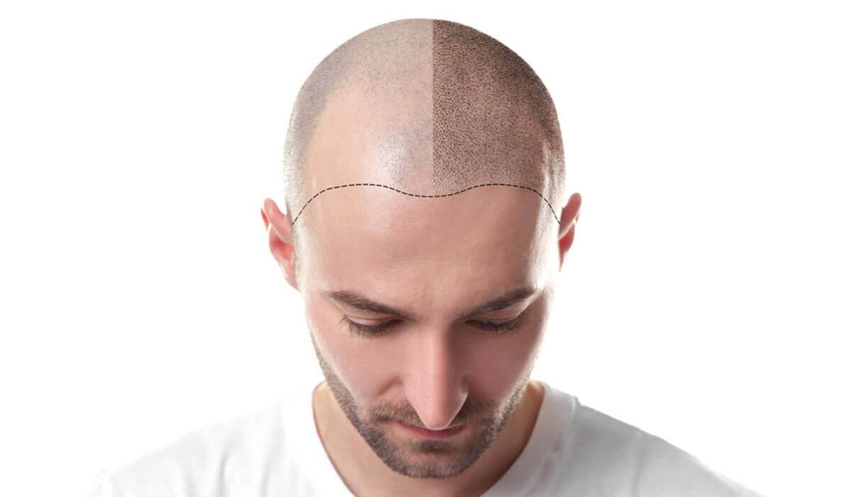 كيف-تتم-زراعة-الشعر