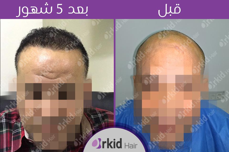 زراعة الشعر قبل وبعد 2