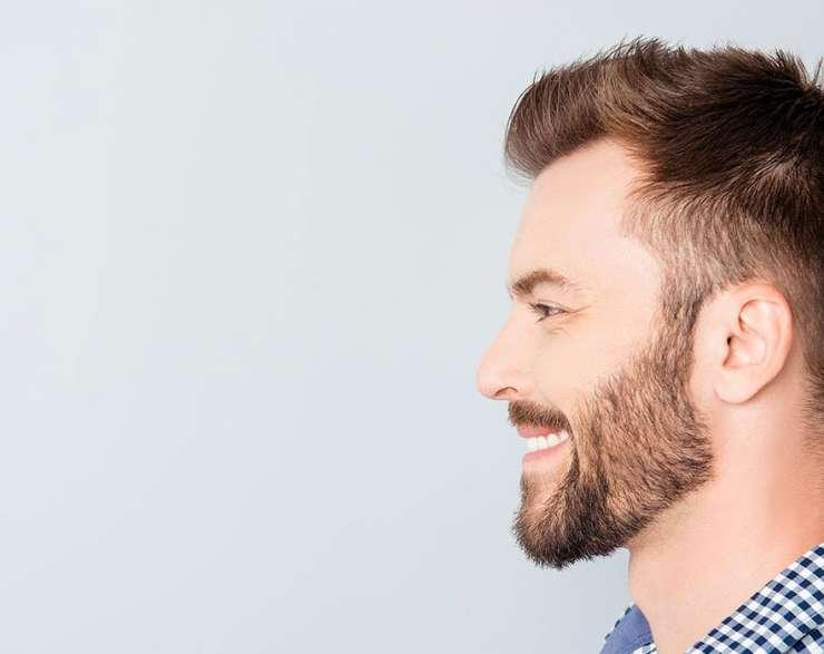 بعد زراعة الشعر بشهرين.. ومتى تظهر النتائج النهائية؟