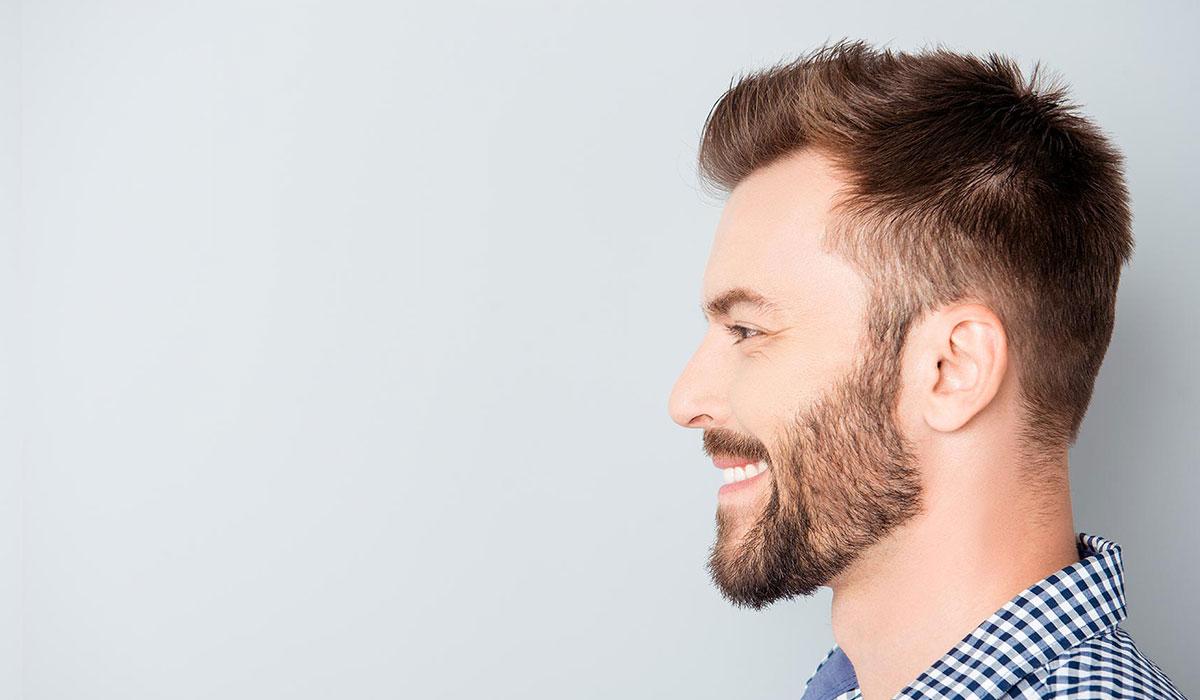 بعد زراعة الشعر بشهرين