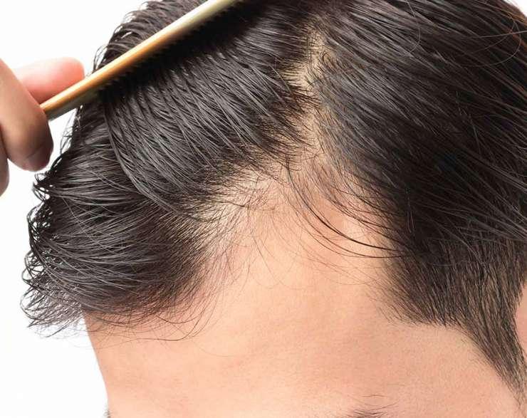 علاج الصلع المبكر.. وأهم الأسباب وكيفية الحفاظ على الشعر