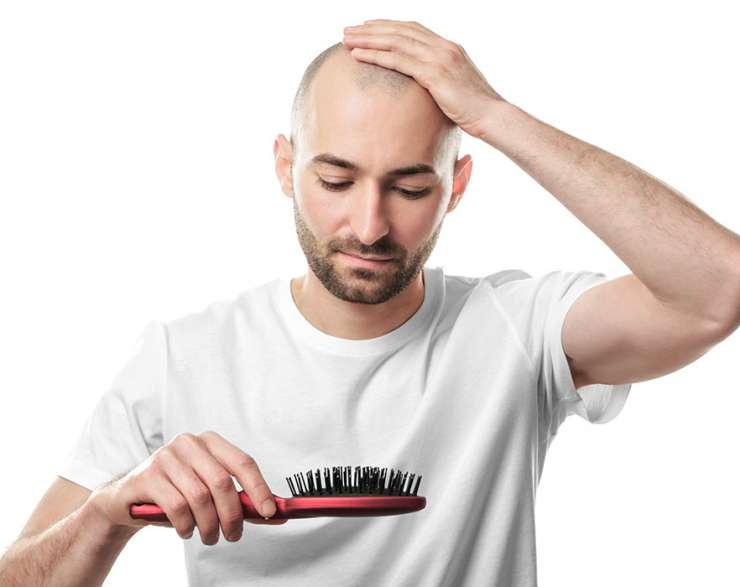 عيوب زراعة الشعر بتقنية الاقتطاف.. وكيفية الحد منها